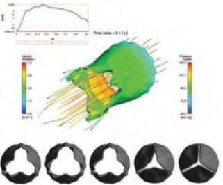 تحلیل سازه ای، حرارتی و CFD برای دستگاه های پزشکی